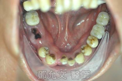 植牙前 上顎咬合面