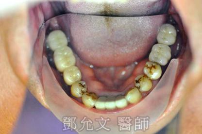 植牙後 上顎咬合面
