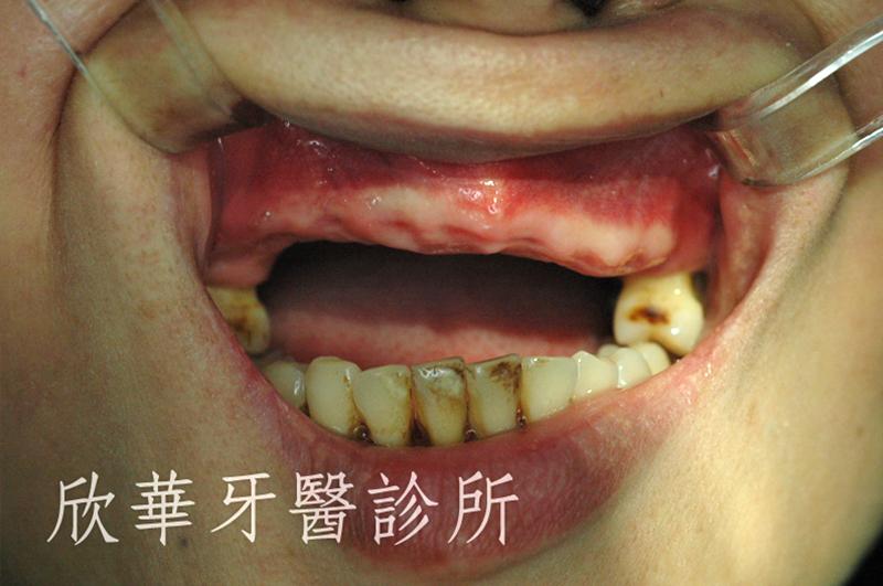 人工植牙(人工牙根植體植入手術)區域 拔牙後口內實照