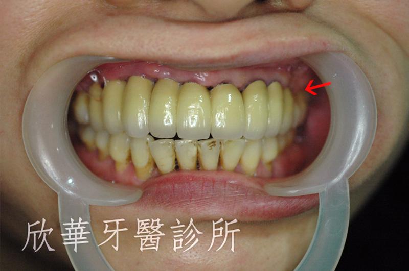 人工植牙(人工牙根植體植入手術)後 裝戴義齒口內實照