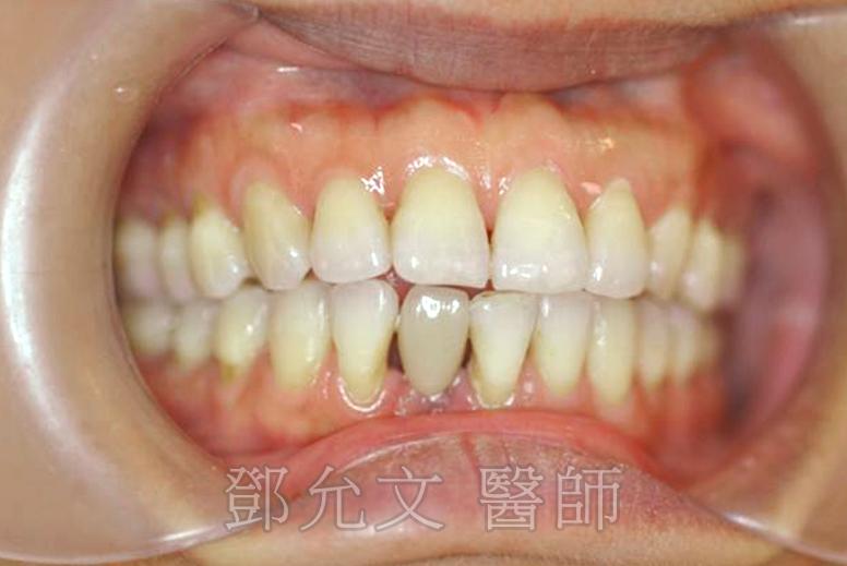 牙周病植牙並局部矯正