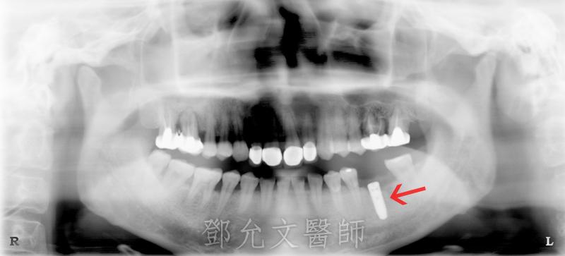 人工植牙(人工牙根植體植入手術)後X光片