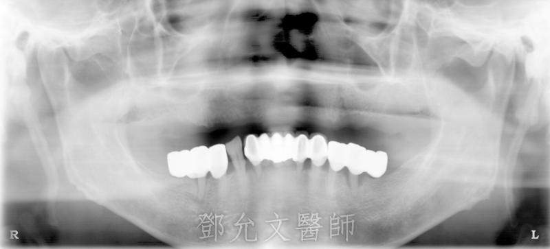 人工植牙(人工牙根植體植入手術)前 原始X光片(植牙手術前)