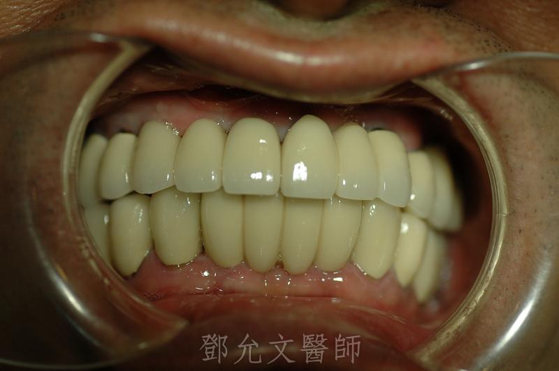 植牙完成裝戴義齒口內照片(正面觀)