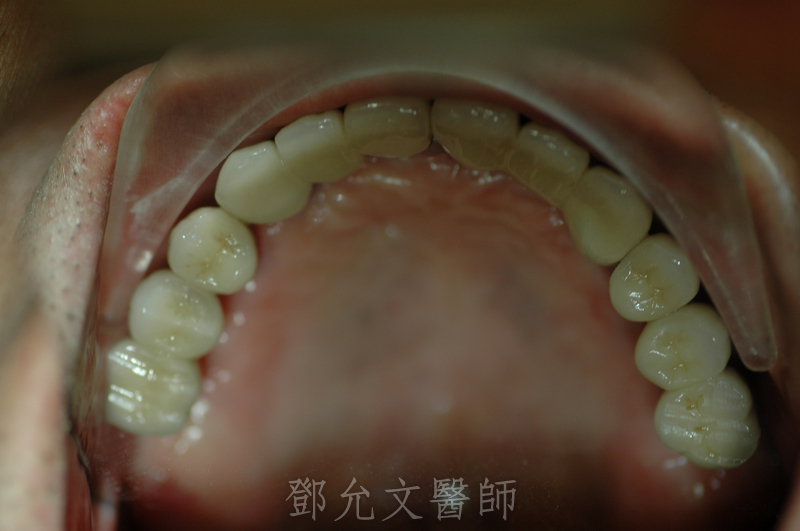植牙完成裝戴義齒口內照片(上顎咬合面觀)