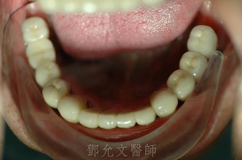 植牙完成裝戴義齒口內照片(下顎咬合面觀)