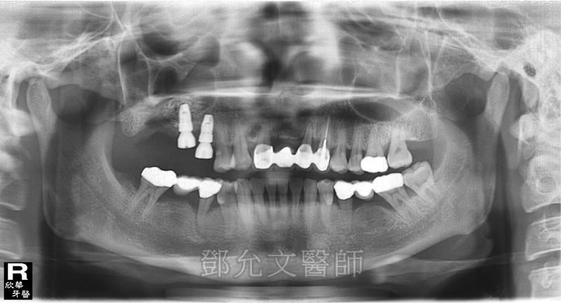 第一次植牙手術後右上後牙區植入二顆植體並同時進行上顎竇增高術(Sinus Lifting)