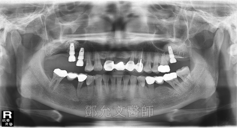 第二次植牙手術後,左上第二大臼齒即拔即種並同時進行上顎竇增高術(Sinus Lifting)