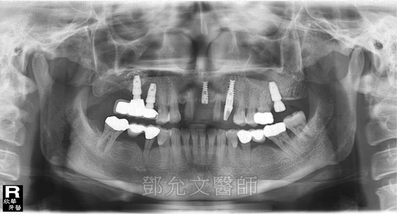 第一次植牙完成,右上後牙區裝戴三顆固定義齒 第三次植牙手術後(左上犬齒即拔即種),上顎前牙區植入二顆植體