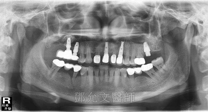 第三次植牙完成,上顎前牙區裝戴二顆固定義齒