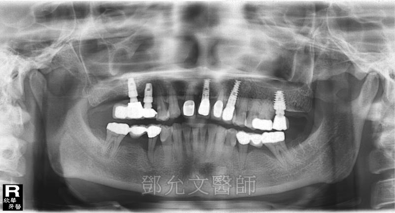 第二次植牙完成,左上後牙區裝戴一顆固定義齒