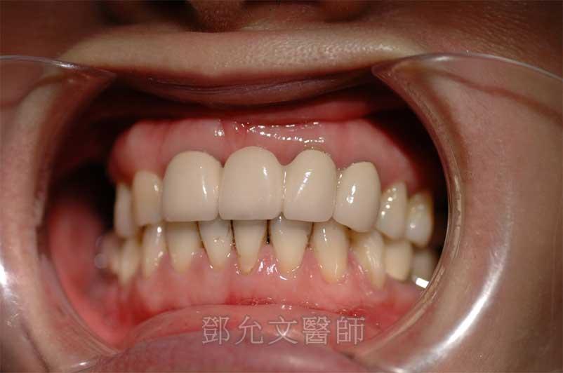上顎前牙植牙前口內照