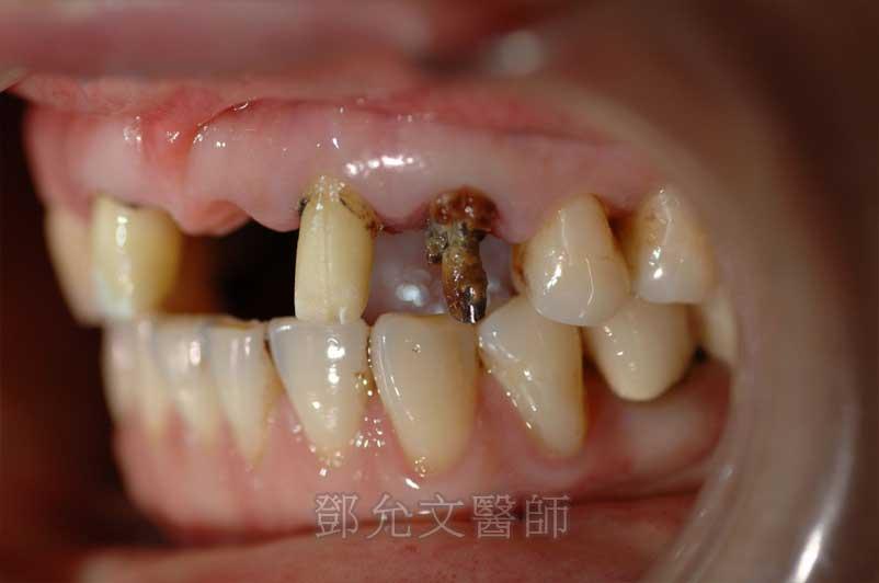 上顎前牙拆除舊假牙後口內照(左上犬齒嚴重蛀壞)