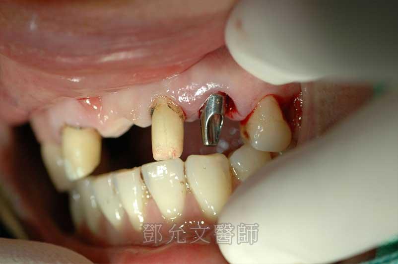左上犬齒植牙後裝上支台齒