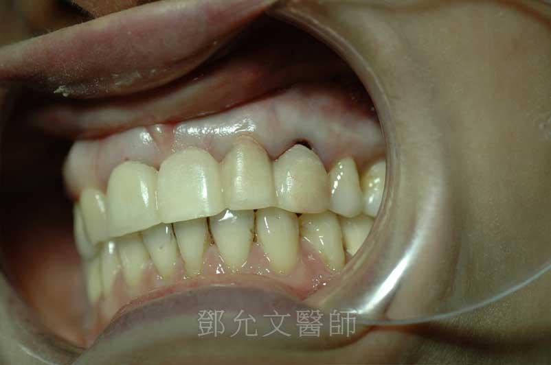 植牙後立即製作臨時假牙