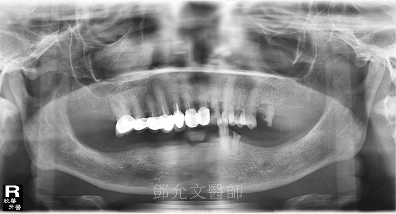 植牙前 X光片