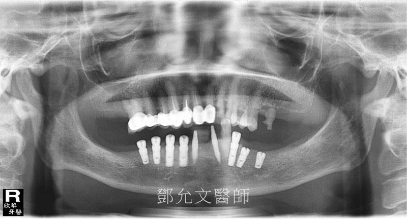 植牙後 X光片