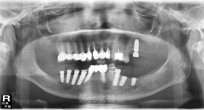 第三次人工植牙(人工牙根植體植入手術)後X光片(植牙手術後)