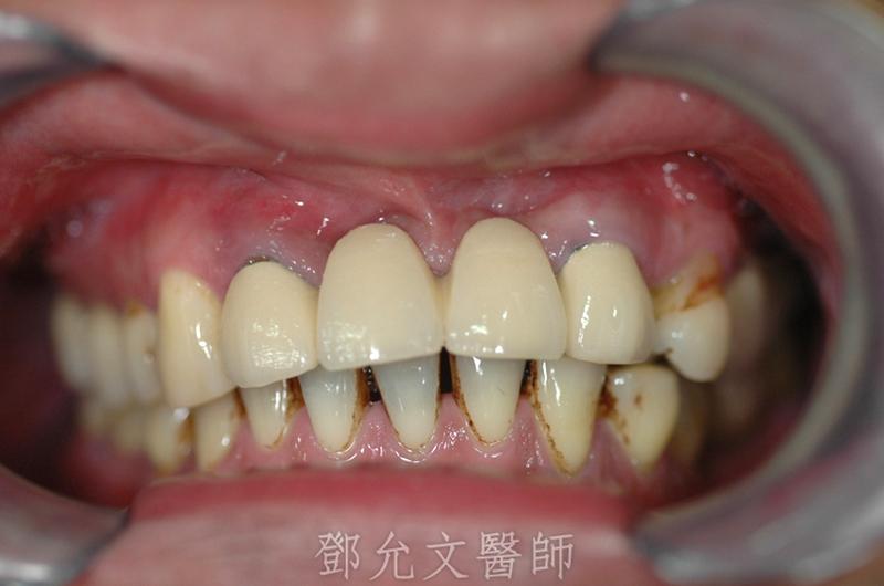 植牙前舊義齒口內照