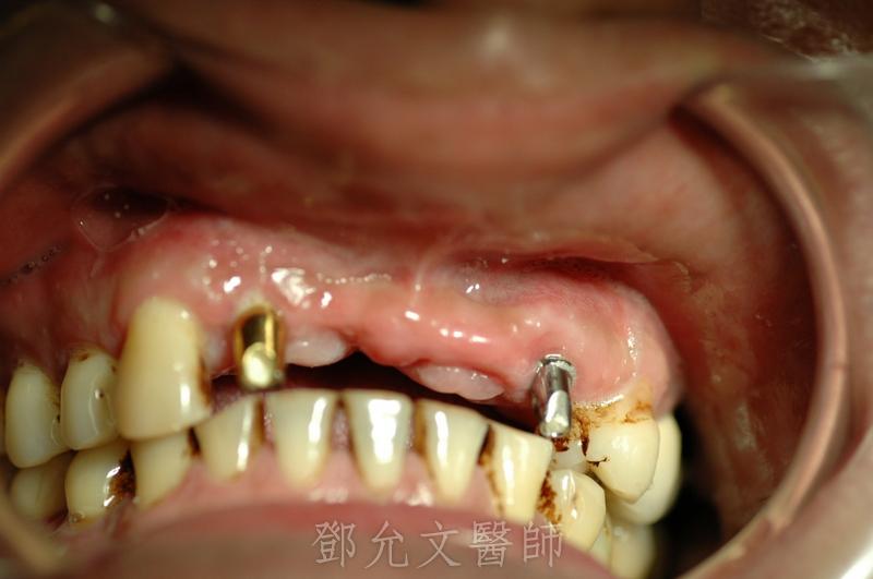 植牙完成,義齒印模時口內照