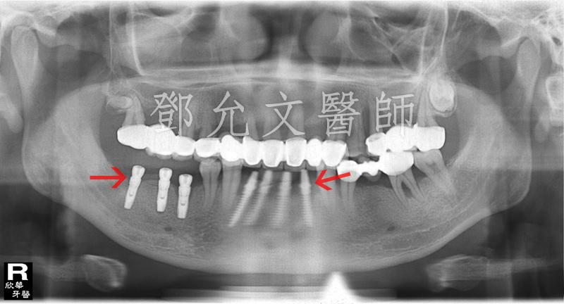 人工植牙(人工牙根植體植入手術)後X光片(植牙手術後)