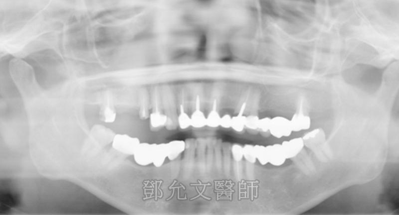 病患求診前X光片