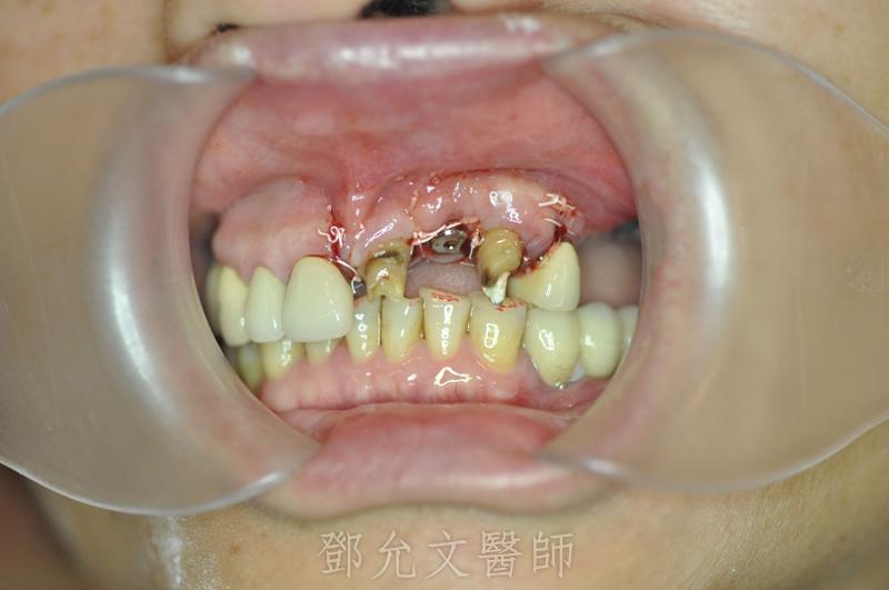 舊式假牙拔除 即拔即種人工植牙