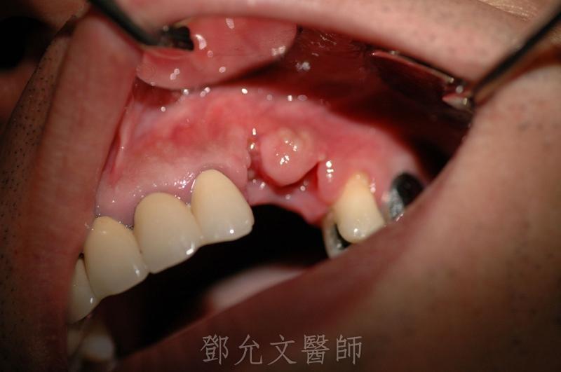 病患求診時左上犬齒及左上第一小臼齒拔牙傷口頰側觀