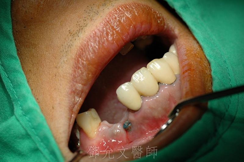 第二次植牙手術目地是做軟組織重建,增加頰側軟組織厚度以增進美觀