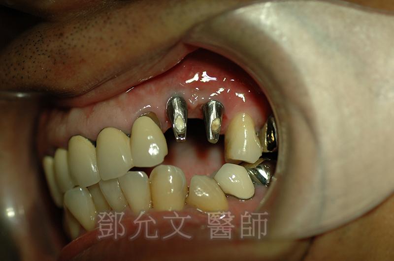 植入人工牙根植體植入手術後, 口內實照