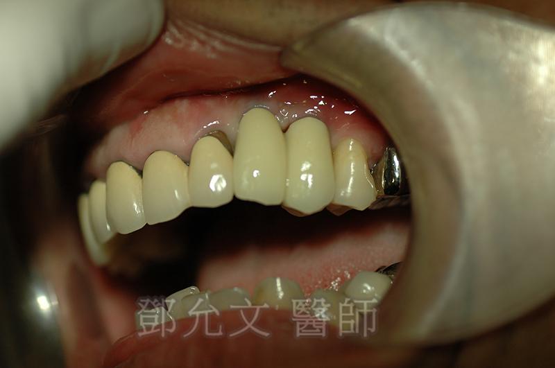 人工植牙後 裝戴義齒口內實照