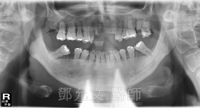 病患求診時X光片
