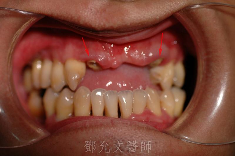 植牙手術前口內照(正面觀)