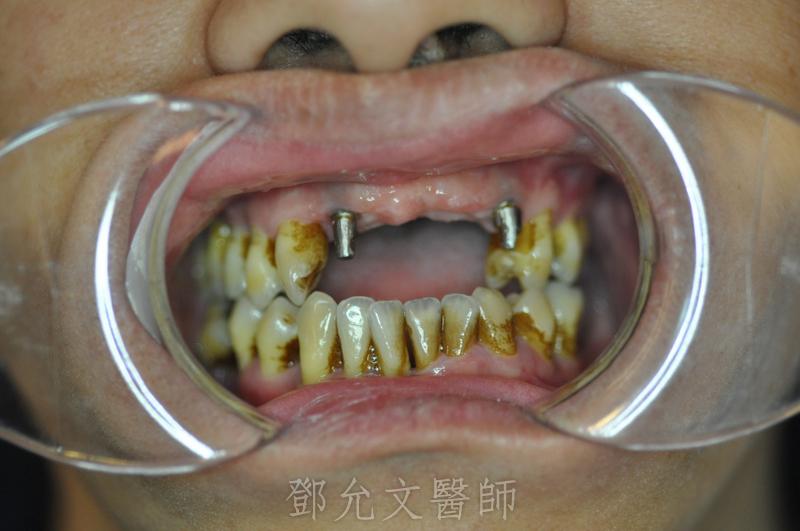 植牙義齒印模前口內照(正面觀)