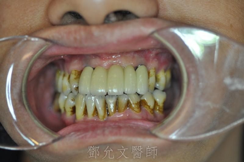 植牙完成,裝戴五顆固定義齒口內照