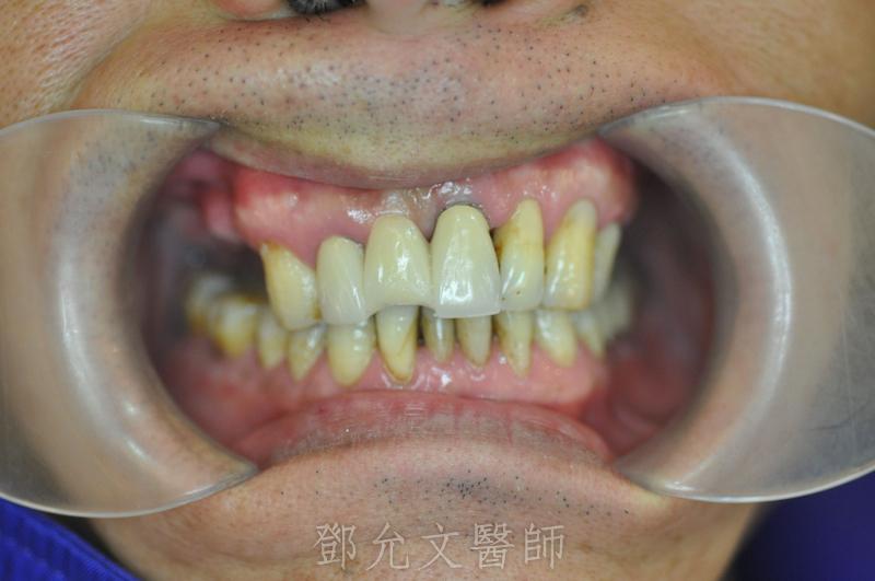 植牙手術前,口腔內照片(正面觀)