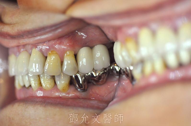 裝戴固定義齒後口內照(側面觀)