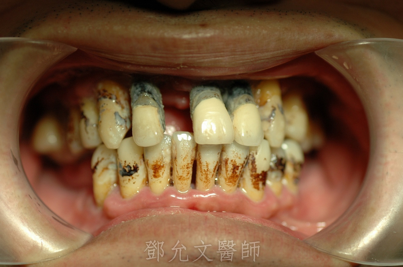 植牙手術前病患口內照片,典型成人型牙周病