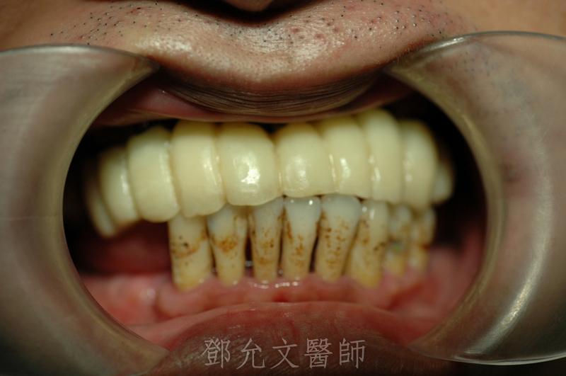 植牙手術(即拔即種十顆植體)後,當日立即製作臨時義齒恢復美觀,免除無齒的尷尬