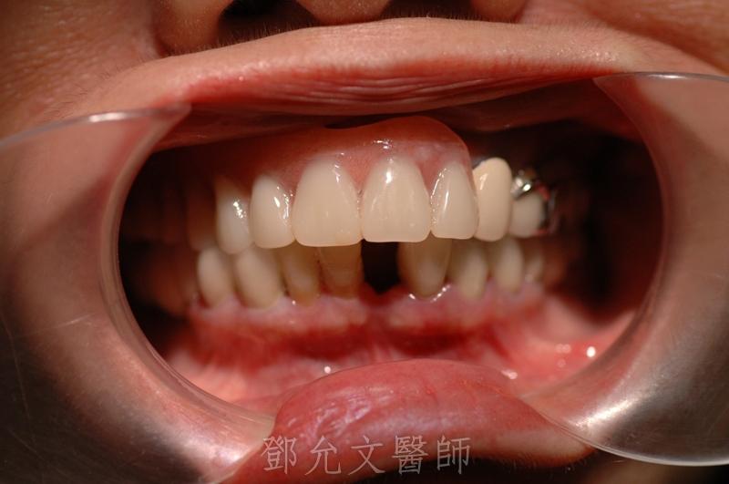 植牙手術前口內照片