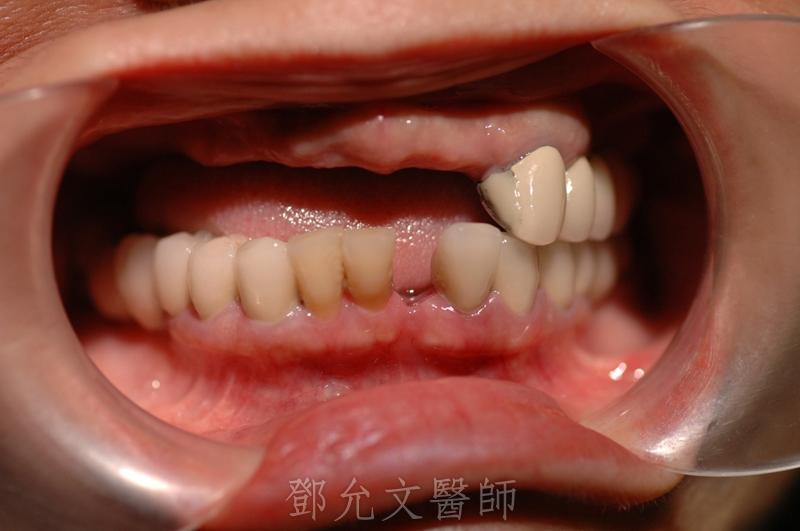 植牙手術前口內照片(拿下上顎活動假牙)