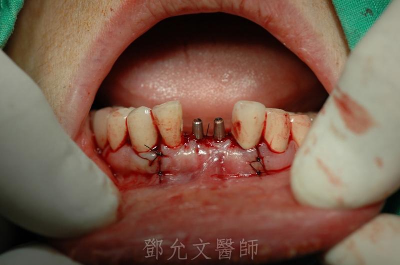 植牙手術後即拔即種傷口縫合口內照片