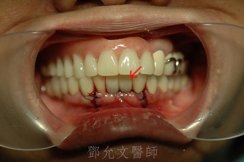 植牙手術後,即拔即種,立即裝上臨時義齒,恢復美觀口內照片