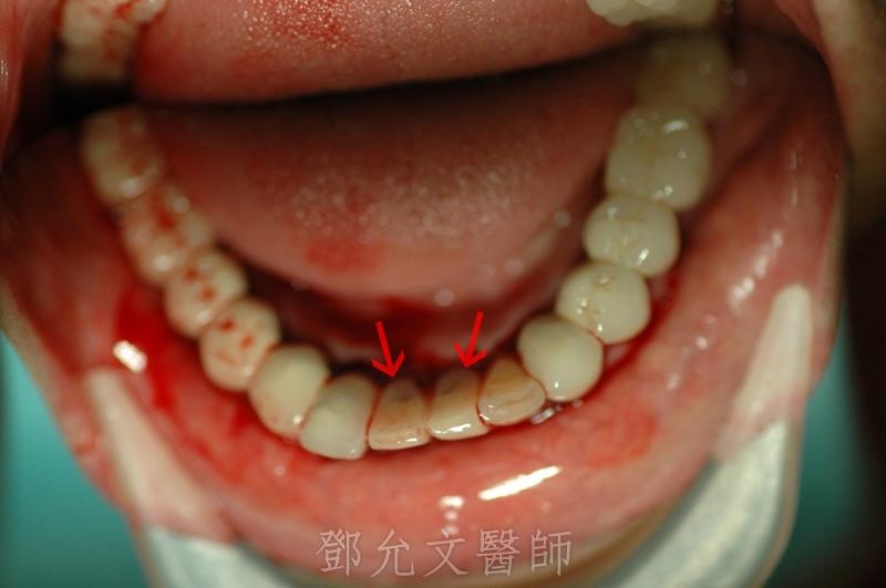 植牙手術後裝上臨時義齒