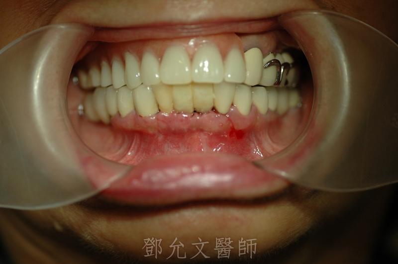 植牙手術後二星期拆線後口內照片