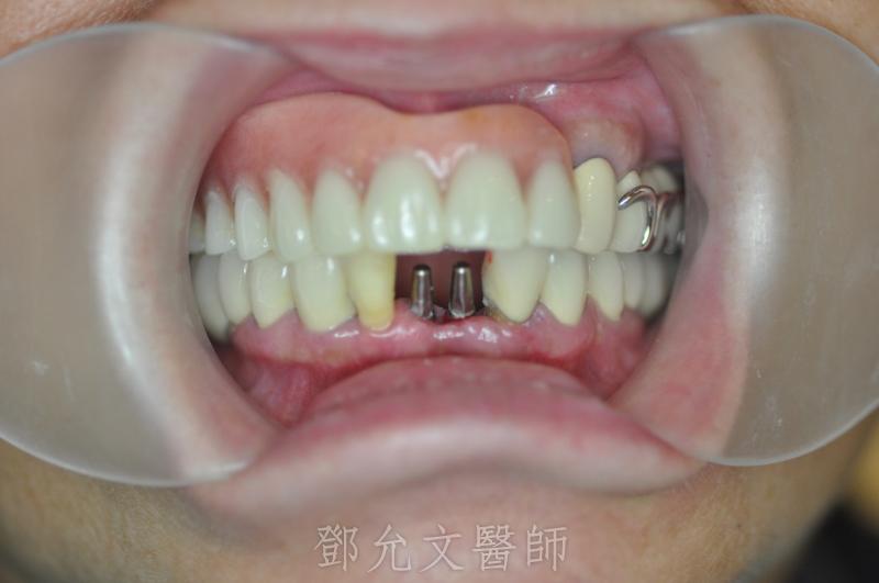 植牙手術(即拔即種)一個月後植體狀態,準備印模制作義齒