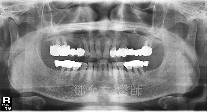 病患求診時X光片(植牙手術前)
