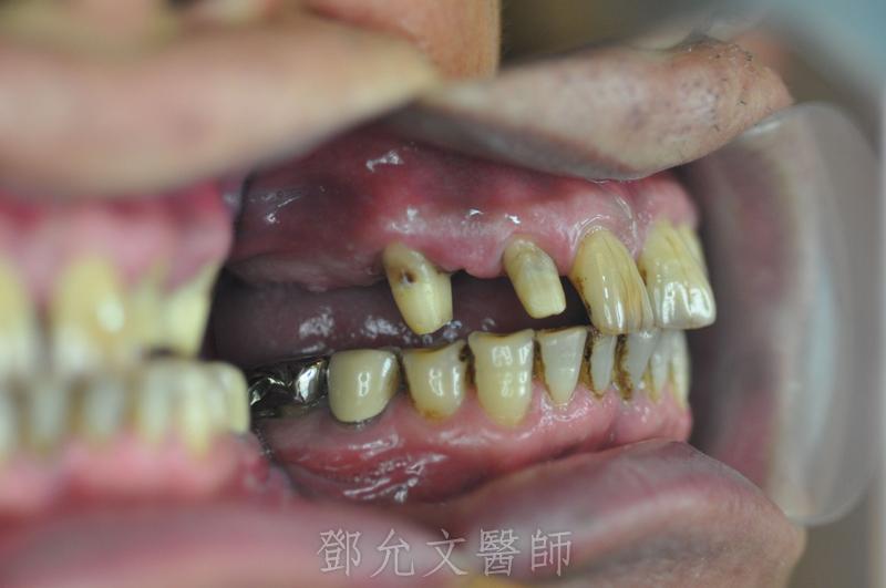 植牙完成X光片,裝戴固定義齒