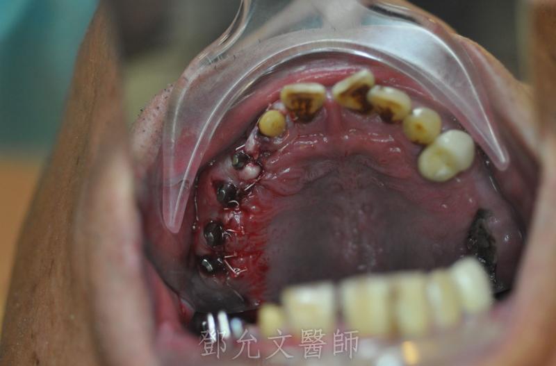 植牙手術完成,傷口縫合口內觀(咬合面觀)