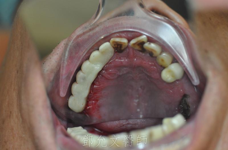 植牙手術後立即承載,立即臨時義齒恢復美觀(咬合面觀)